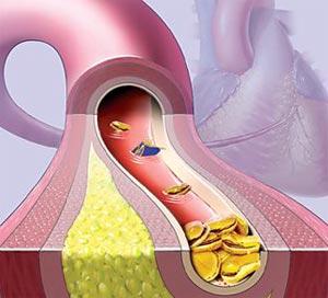 сократить холестерин в крови